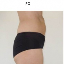 ZLipo System - presentation of the effects of cryolipolysis - Dr Parda Aesthetic Medicine Clinic