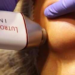 RF INFINI - firming the flaccid facial skin - Dr Parda Aesthetic Medicine Clinic