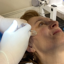 Using hyaluronic acid syringe under the skin of the face - Dr Parda Aesthetic Medicine Clinic