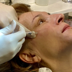Botox injection during face modeling at Dr Parda Aesthetic Medicine Clinic