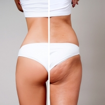 Lipofilling - using your own fat in body shaping
